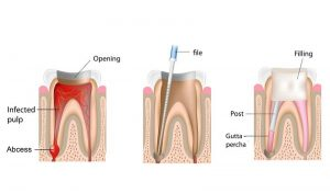 A hand drawn graphic showing the 3 step process of a root canal treatment.