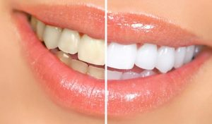 A before and after image of a showing the results of teeth whitening on a female.
