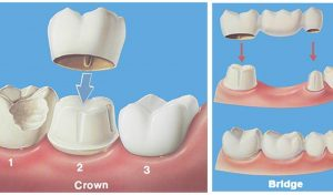 An illustration showing a dental crown and bridge.