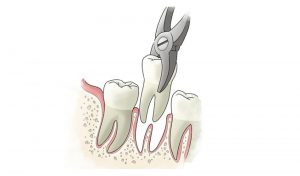 An illustration of a tooth being extracted.